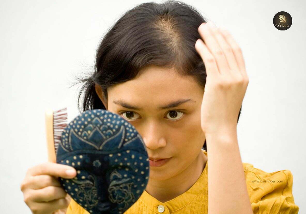 trị rụng tóc ở nữ