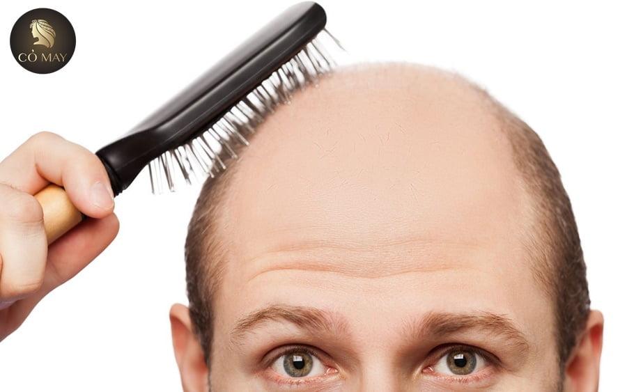 Săn Lùng 6 Cách Trị Rụng Tóc Hói Đầu Đỉnh Của Đỉnh