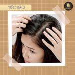 trị gàu rụng tóc
