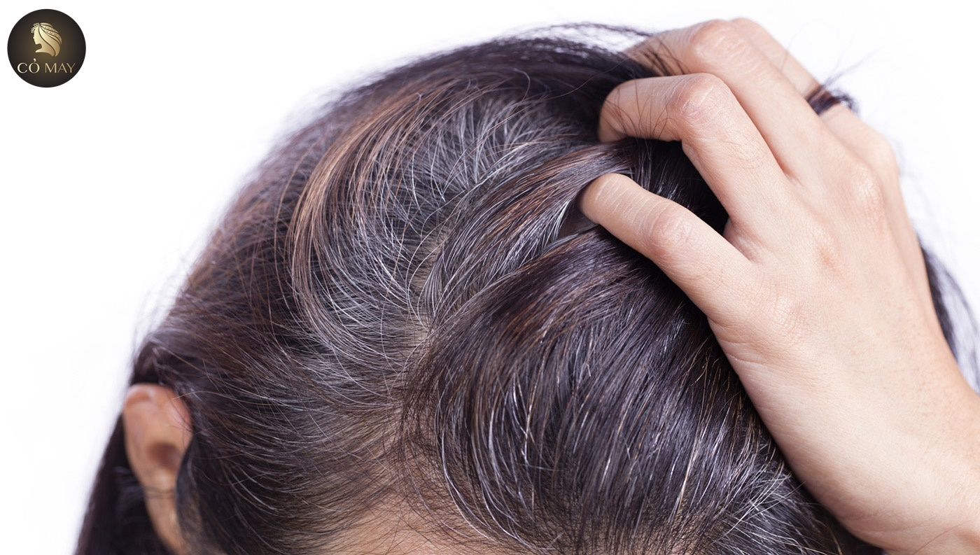 Tại sao tóc bạc sớm
