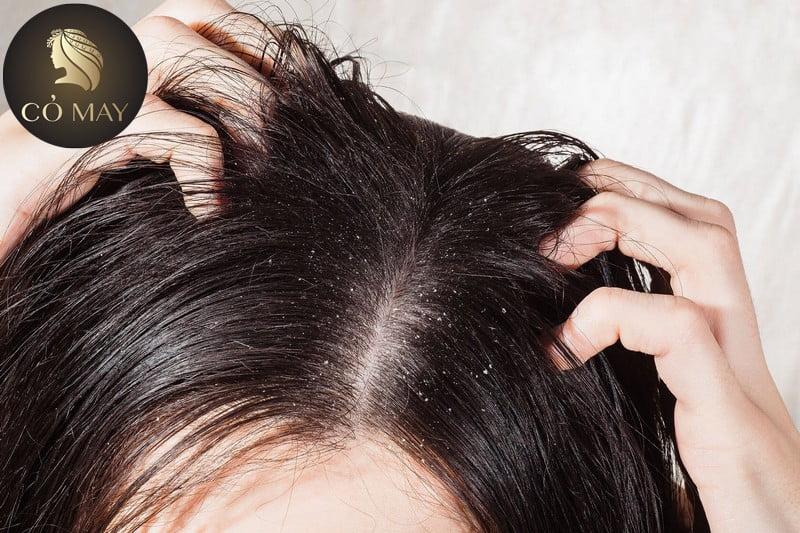 Gàu mảng là tình trạng đóng vảy da đầu thành từng mảng.